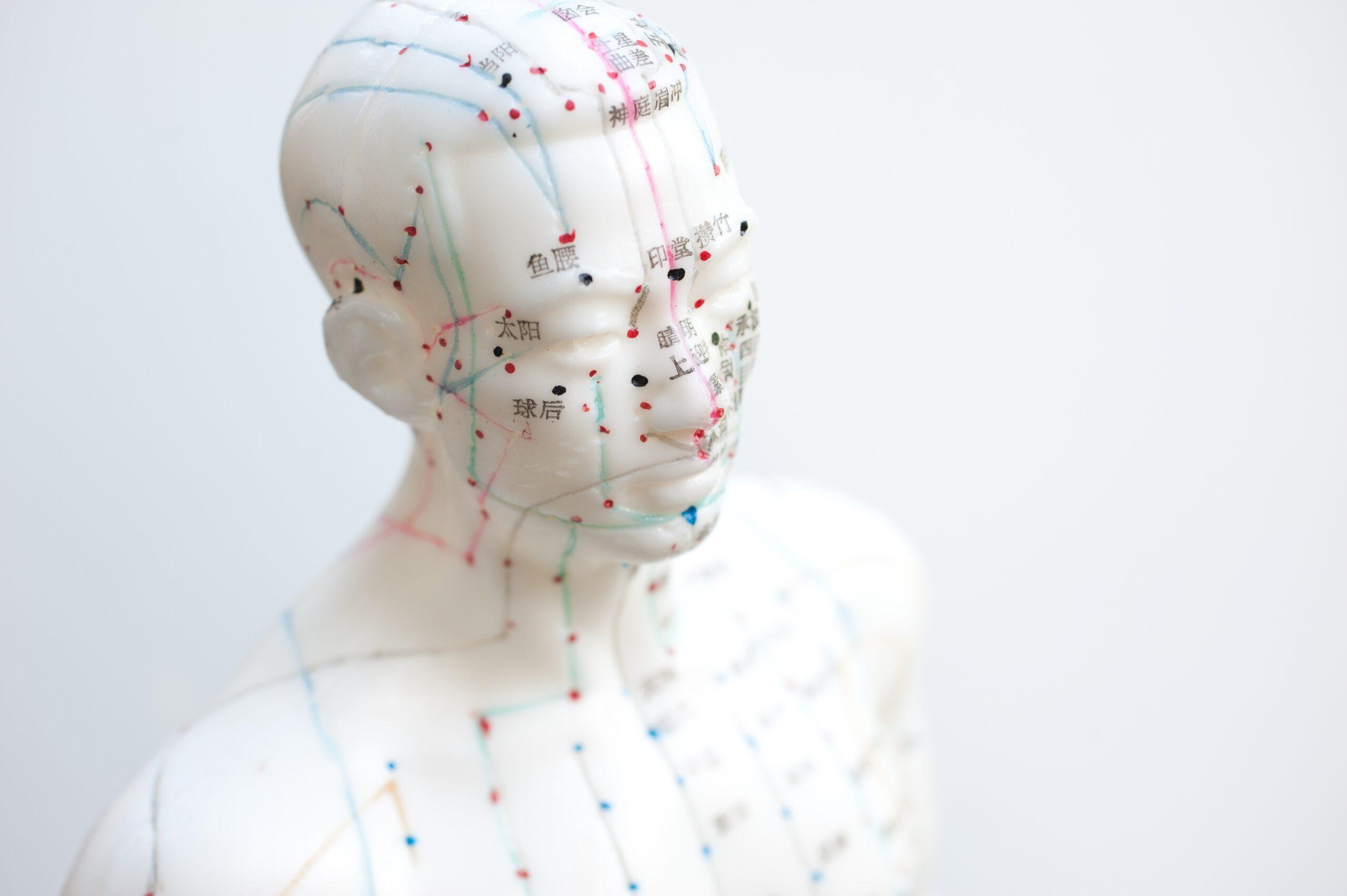 Akupunktur - Mein Therapieangebot, stets auf Sie individuell zugeschnitten.